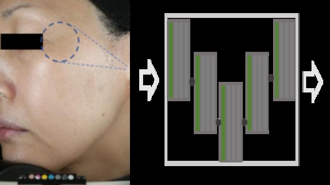더마프로, 임상기관 최초 인공지능 '딥러닝 기반' 주름 평가시스템 특허 취득