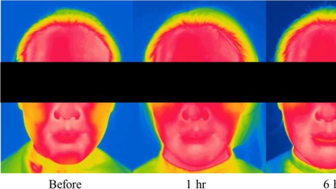 아모레퍼시픽, '마스크 착용시 피부변화 연구논문' SCI급 국제학술지 게재